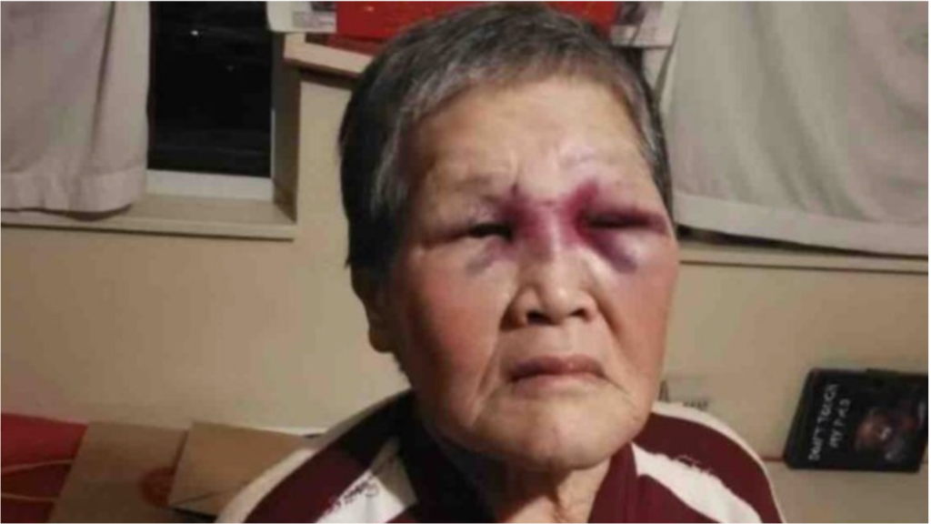 an image of an elderly asian woman with a bruised eye